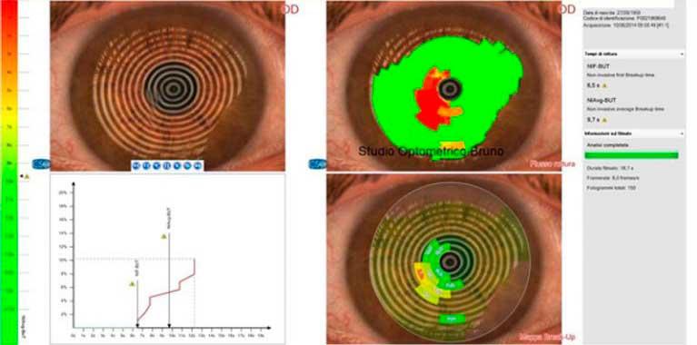 Analisi non invasiva della qualità e quantità del film lacrimale