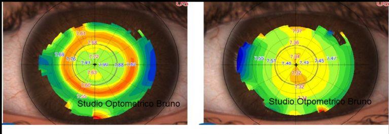 Topografia corneale post trattamento – pre trattamento ortocheratologico