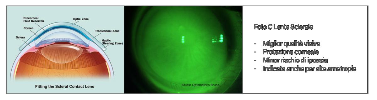lenti sclerali genzano di lucania