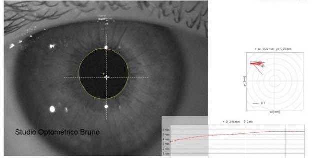 Pupillografia